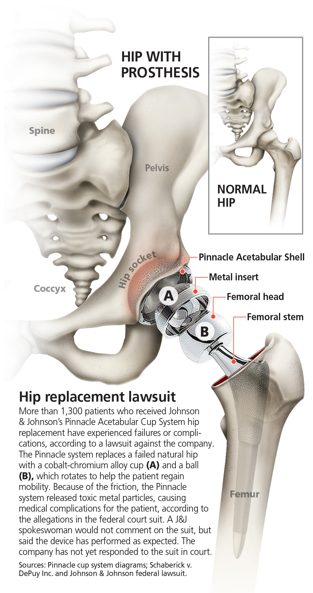 hip replacement prothesis Consumer reports explains what the j&j hip-replacement lawsuit means for people who have one of the devices implanted or so if your prosthetic hip is metal-on.